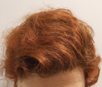 les greffes de cheveux avant apres les greffes de cheveux m decin esth tique marseille dr. Black Bedroom Furniture Sets. Home Design Ideas